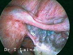 Ενδαγγείωση. Το κυανούν του μεθυλενίου που εγχέεται από τον τράχηλο υπό πίεση διαγράφει τα αγγεία του μεσοσαλπιγγίου. Οι σάλπιγγες δεν είναι διαβατές, ενώ συνυπάρχει ενδομητριωσική κύστη ωοθήκης (χαρακτηριστική λαπαροσκοπική εικόνα).