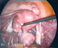 Laparoscopic image of subserous uterine fibroids