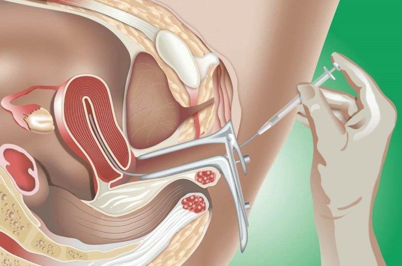 Σπερματέγχυση - Σχηματική αναπαράσταση